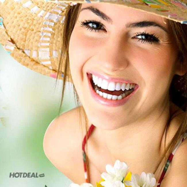 Răng Sứ Titan – Bảo Hành 05 Năm Tại Nha Khoa Minh Tỷ