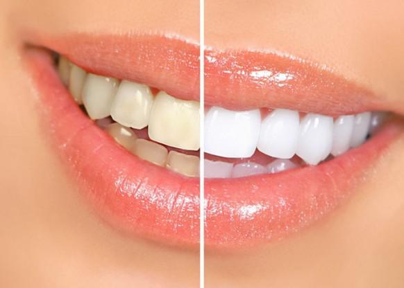 Kem tẩy trắng răng trong 7 ngày